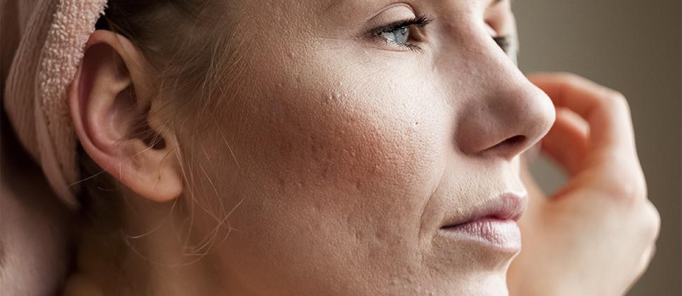 Derribando mitos: cuestión de acné