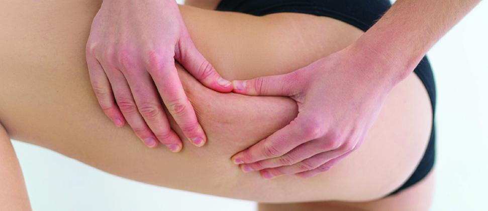 ¡Reduce la apariencia de celulitis en 4 pasos!